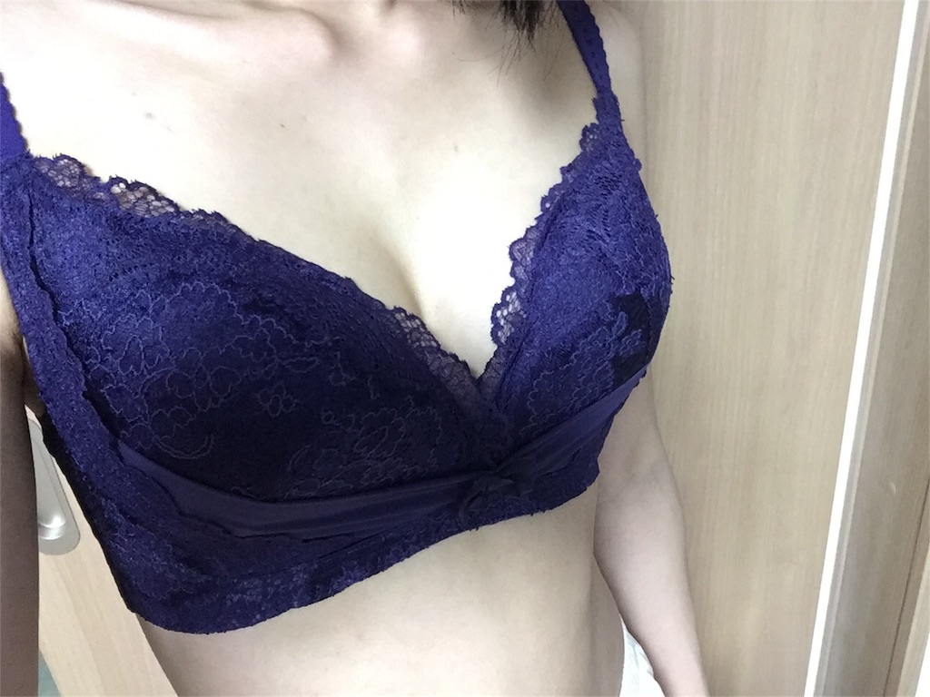 f:id:sakura_biyou:20170907202506j:image