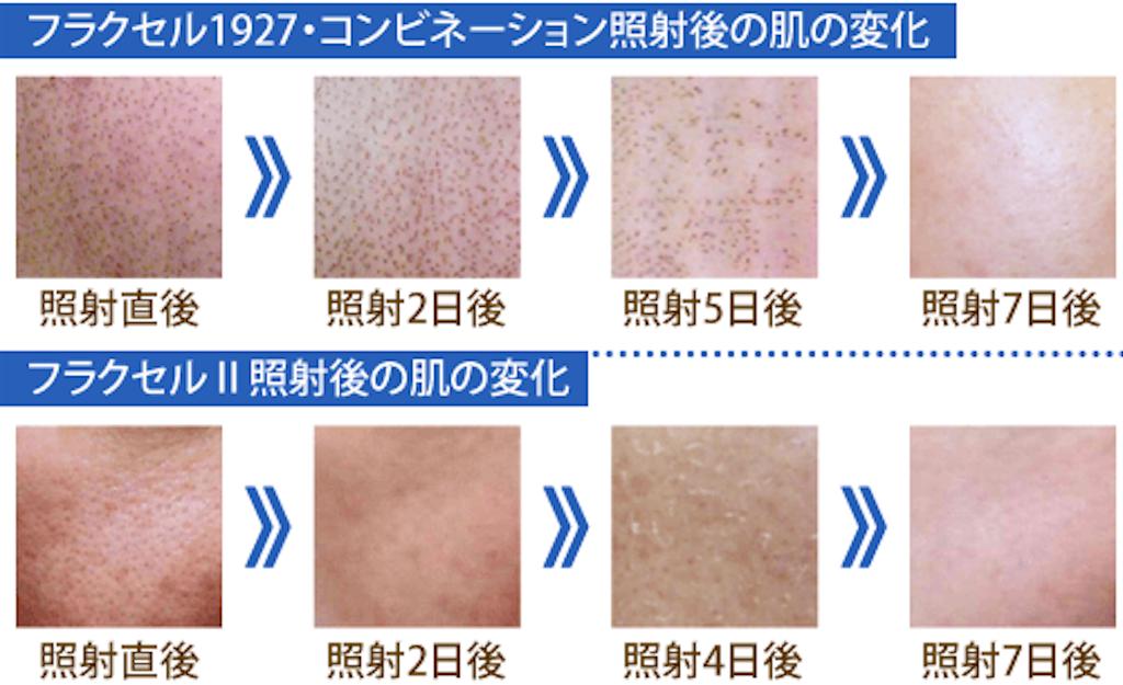 f:id:sakurako-up-up:20170520142114p:image