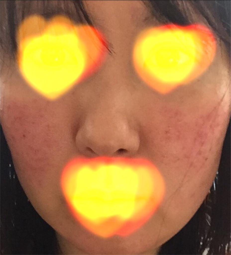 f:id:sakurako-up-up:20170520145117j:image