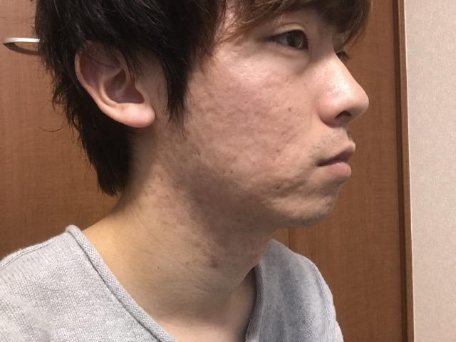 f:id:sakure-kurore:20190515185918j:plain