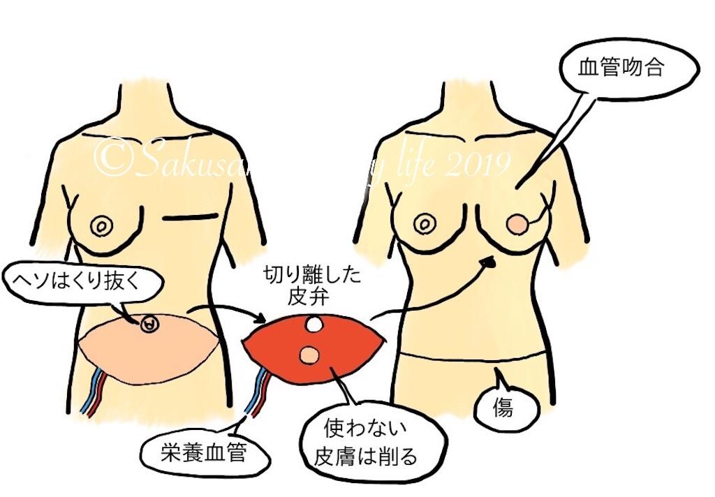 乳房再術(自家組織・深下腹壁動脈穿通枝皮弁術)
