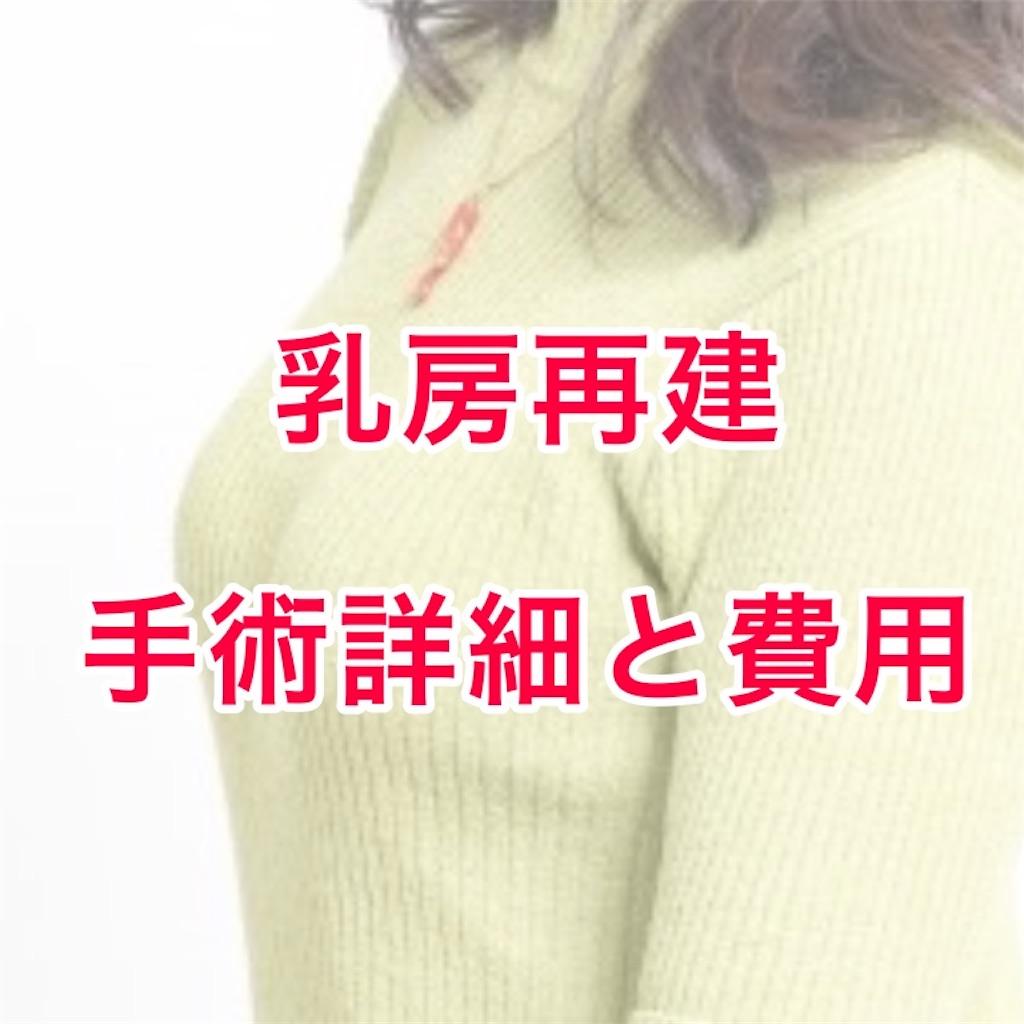 f:id:sakusaku-happy:20190702193048j:image