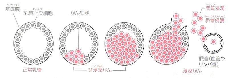 f:id:sakusaku-happy:20200116094313j:plain