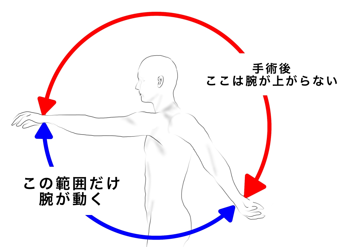 f:id:sakusaku-happy:20200301114019j:plain