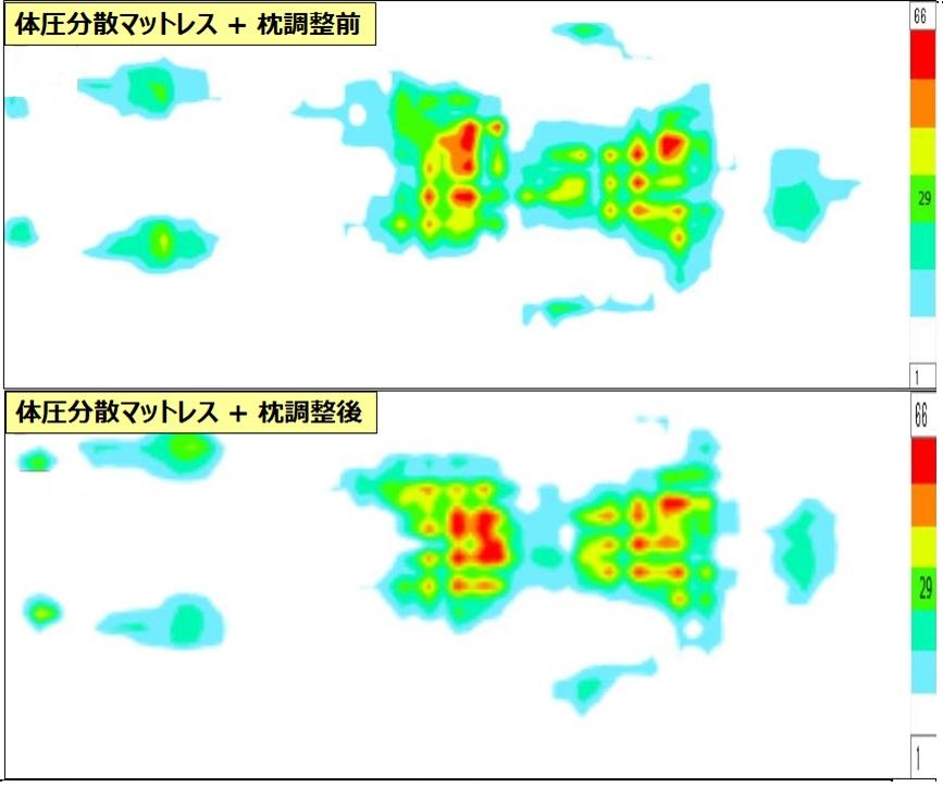 f:id:salaryman30s_koba:20190728172542j:plain