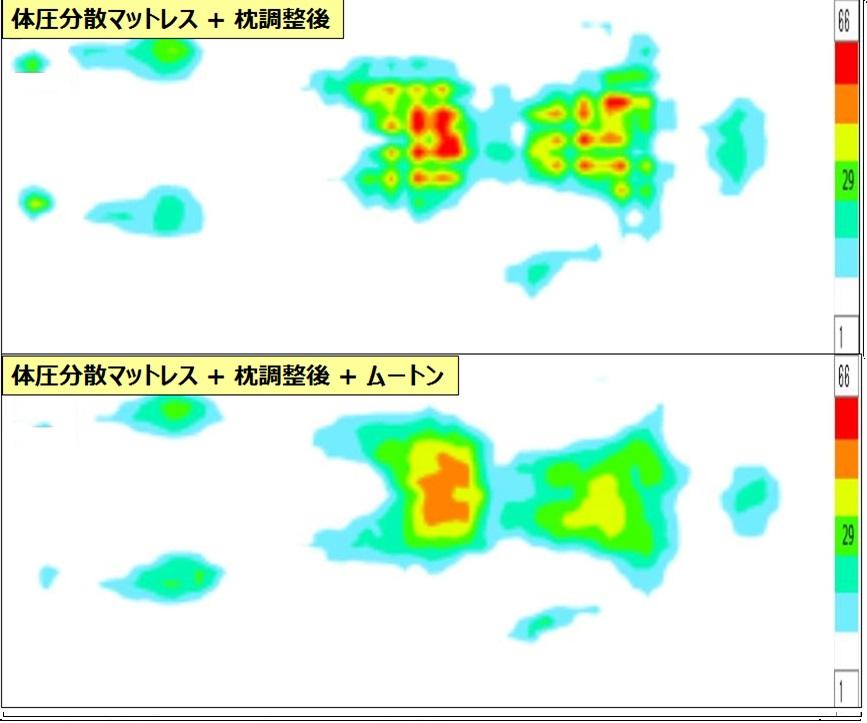 f:id:salaryman30s_koba:20190728172749j:plain