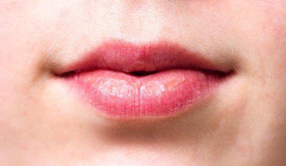 口唇ヘルペスの市販薬、効果的な使用法とは