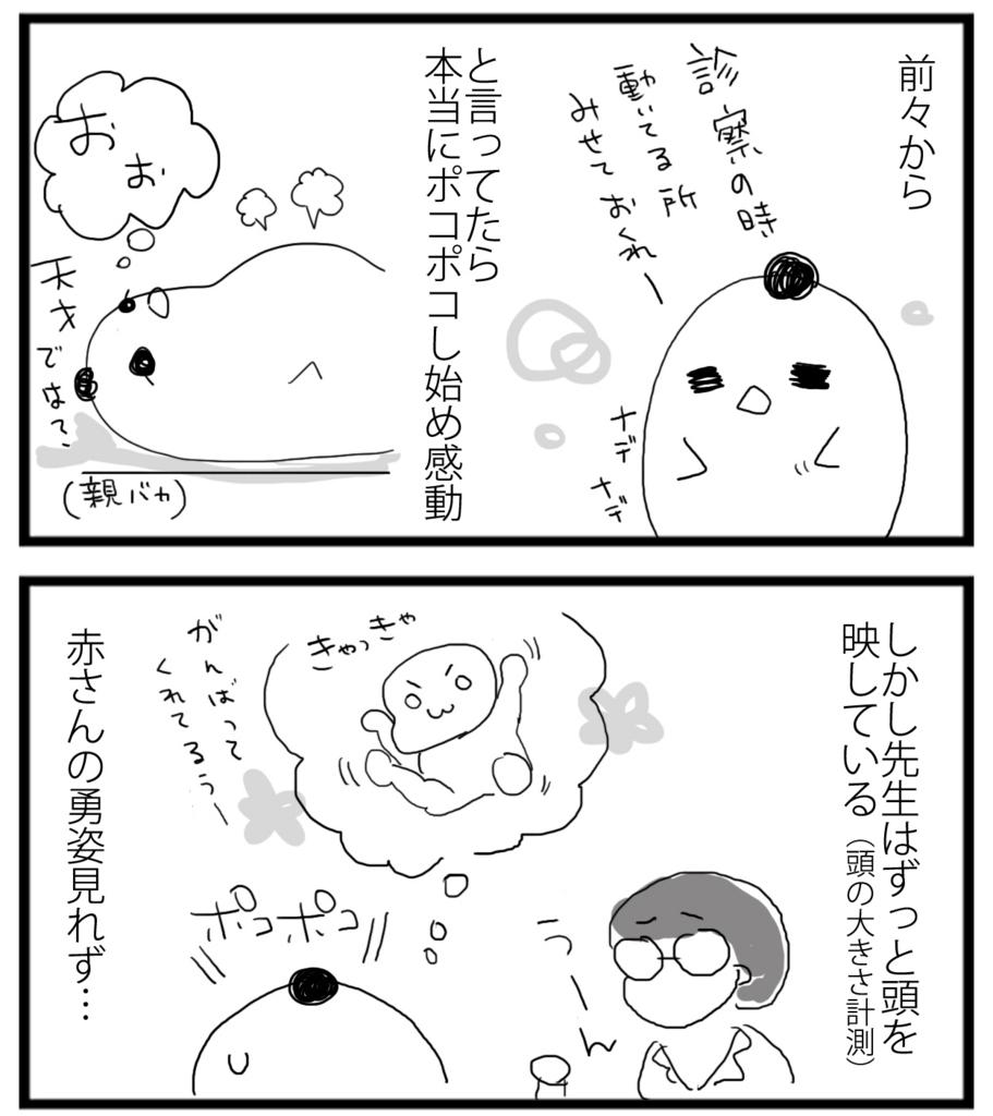 f:id:sasaki33:20161022132340j:plain