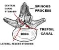 脊椎-2-骨狭窄