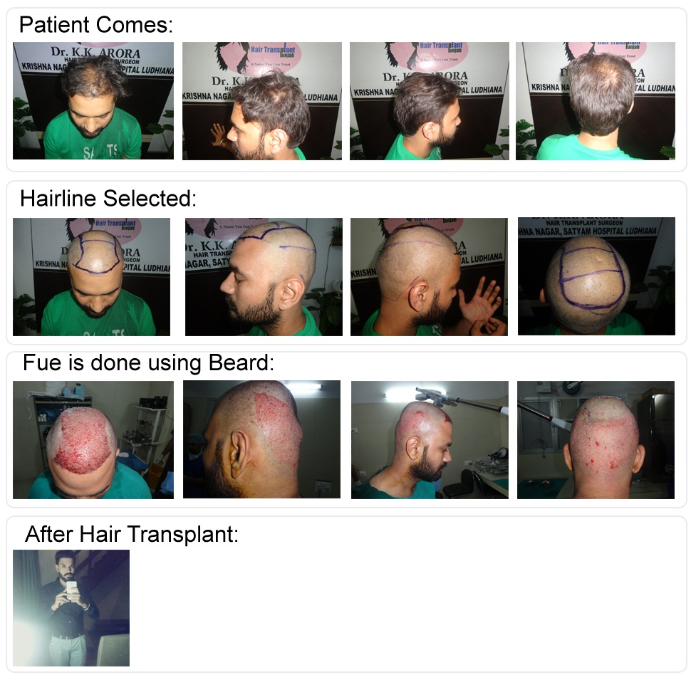 f:id:satyamhairtransplant:20170306153730j:plain