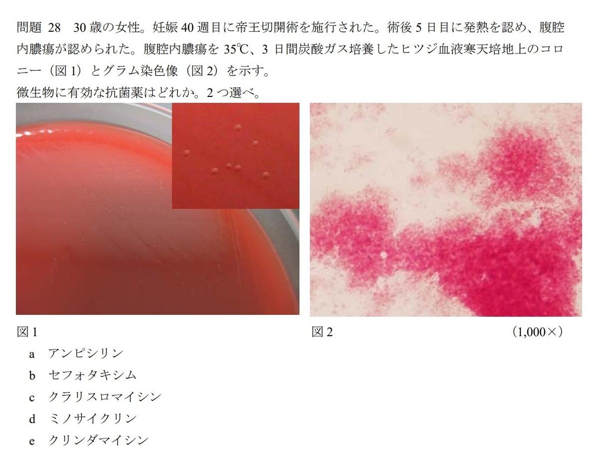 f:id:sawasanblog:20210619143134j:plain
