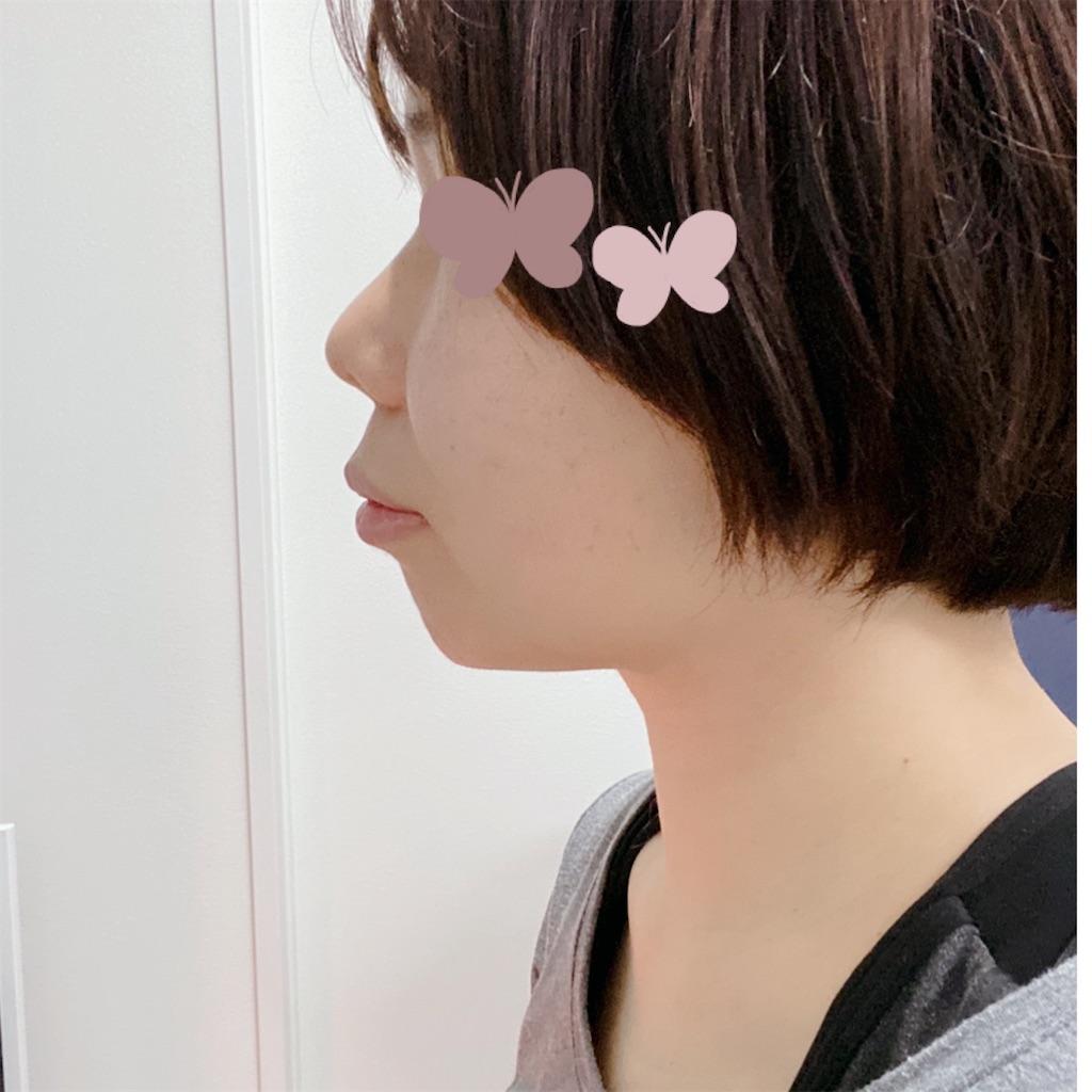 f:id:sayugoro:20210322091442j:image