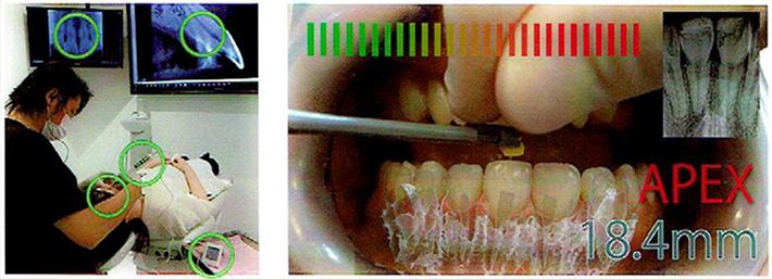 世界初の歯科治療シミュレーションシステム