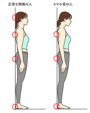 スマホ首・ストレートネックのセルフチェック | あなたは「スマホ首・ストレートネック」になってない? 専門家が教える正しい姿勢&解消ストレッチ方法