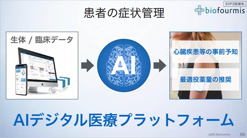 「AIを制する者が未来を制す」AI革命への投資がNAV上昇の鍵を握る-ソフトバンクグループ株式会社 2021年3月期 第2四半期 決算説明会レポート