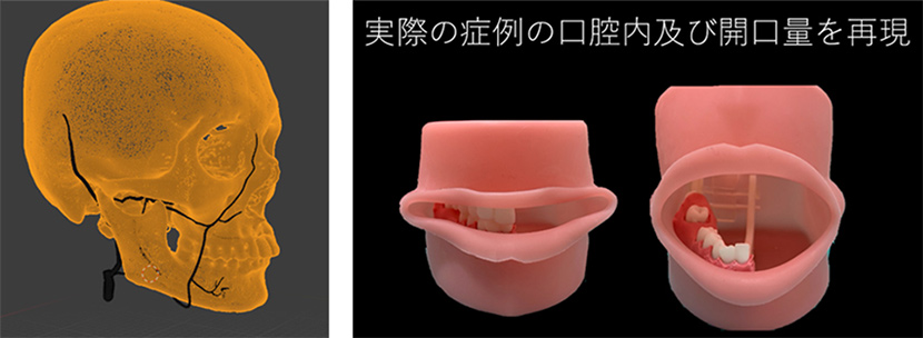 Transmitting VR and AR images over a 5G network to support dental implant surgery