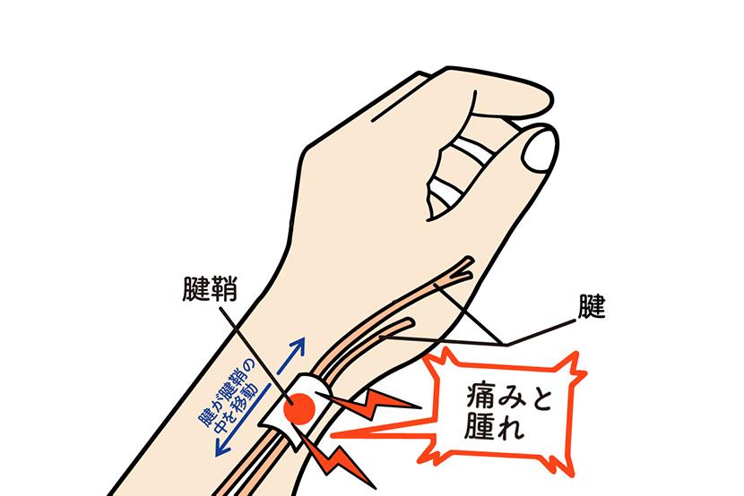 スマホのNGな持ち方で起きる病気。腱鞘炎(ドケルバン病)