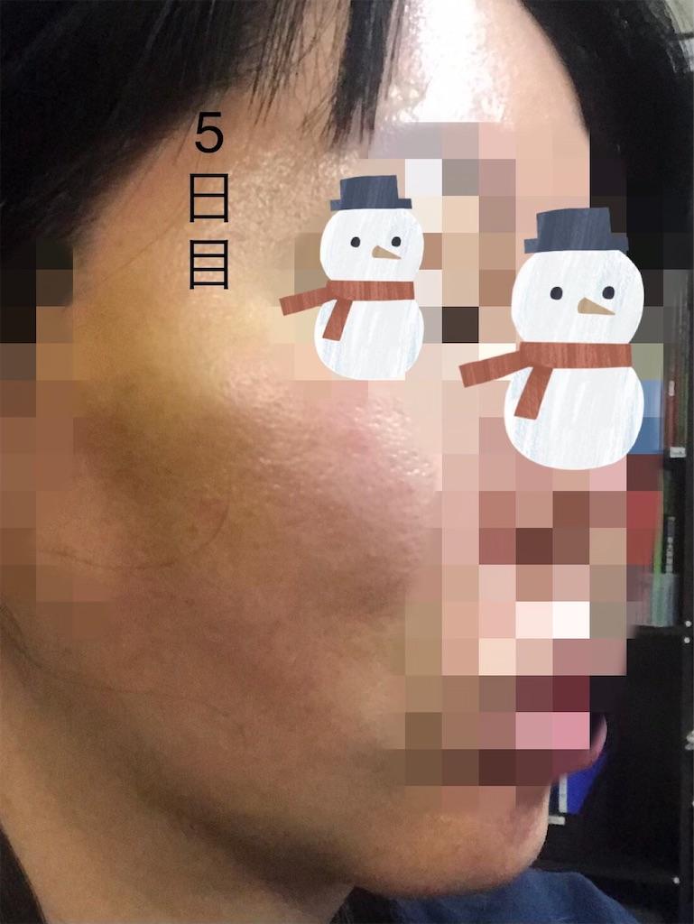 f:id:seikei46:20210320181913j:image