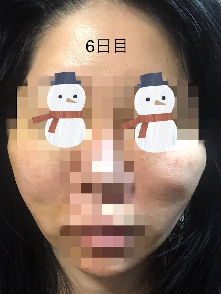 f:id:seikei46:20210320182221j:image