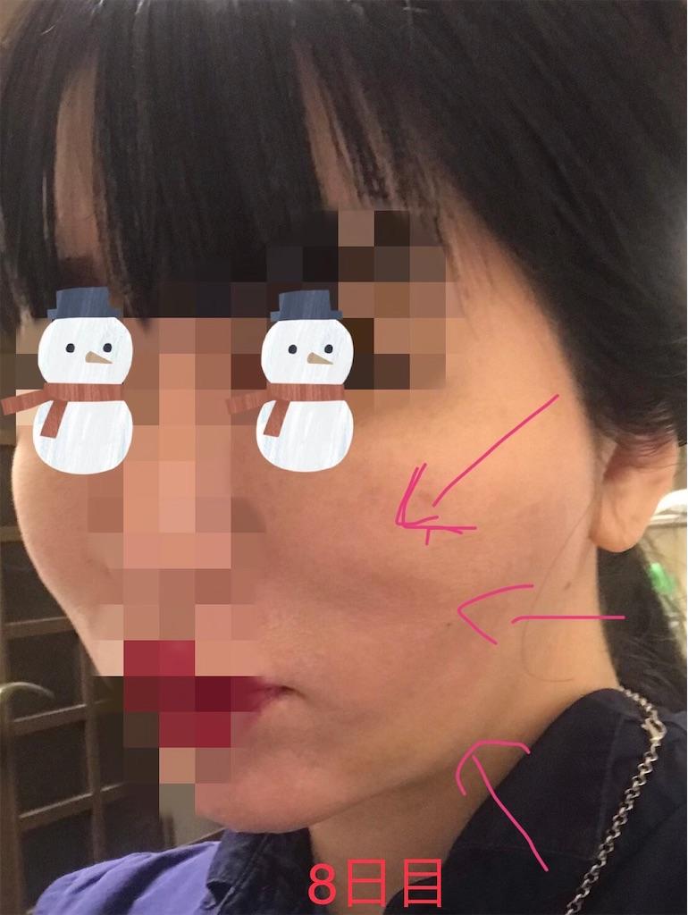 f:id:seikei46:20210320184944j:image