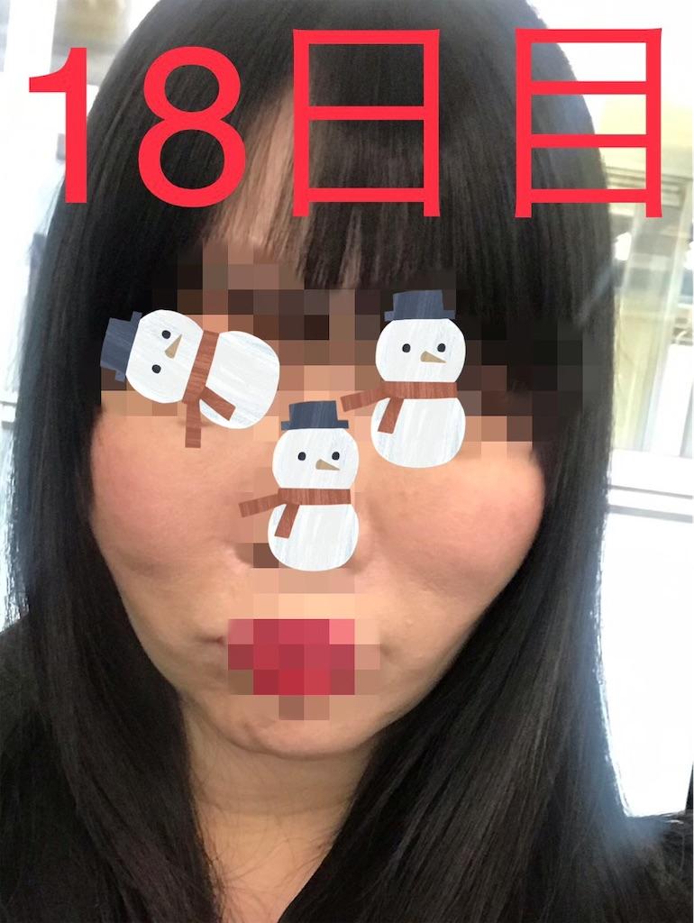 f:id:seikei46:20210320190137j:image