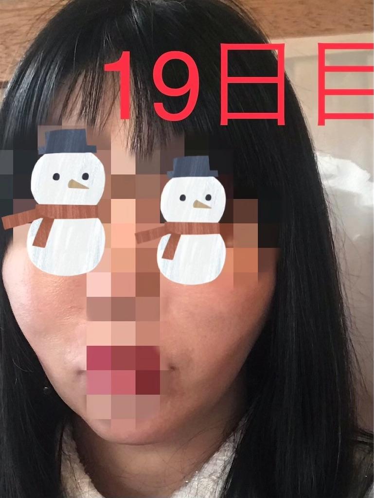 f:id:seikei46:20210320190631j:image