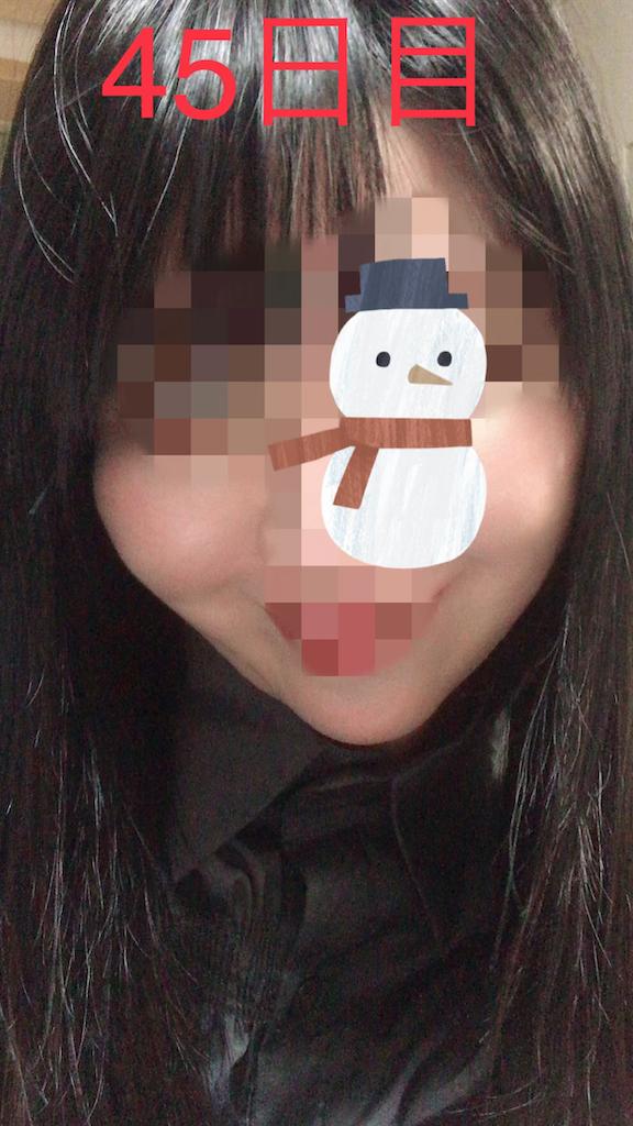 f:id:seikei46:20210320195408p:image