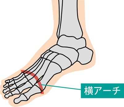 足の横アーチ