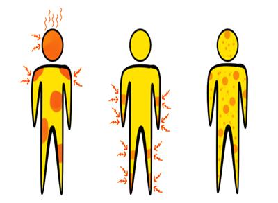 タイでデング熱に感染した時絶対に飲んではダメなのがバファリンやロキソニン系の薬