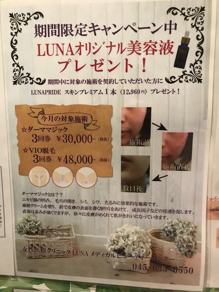f:id:sekiguchiyuki:20180514190401j:plain