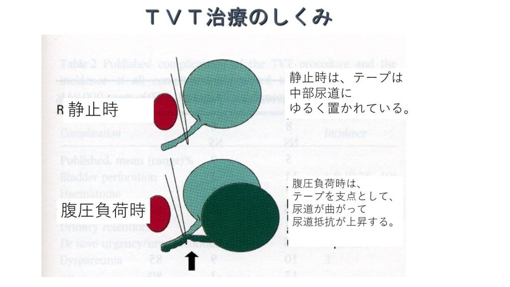 f:id:sekiguchiyuki:20180624095004j:plain