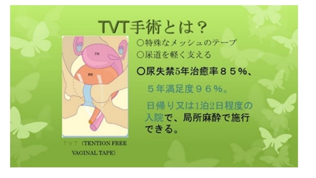 f:id:sekiguchiyuki:20180718104122j:plain