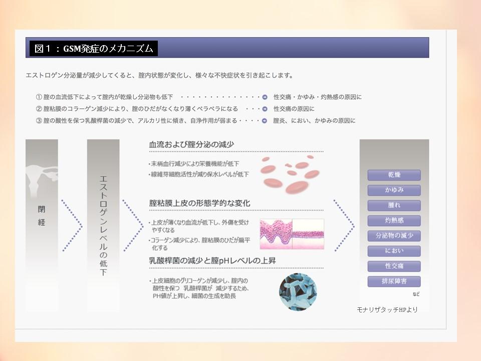 f:id:sekiguchiyuki:20190203191849j:plain