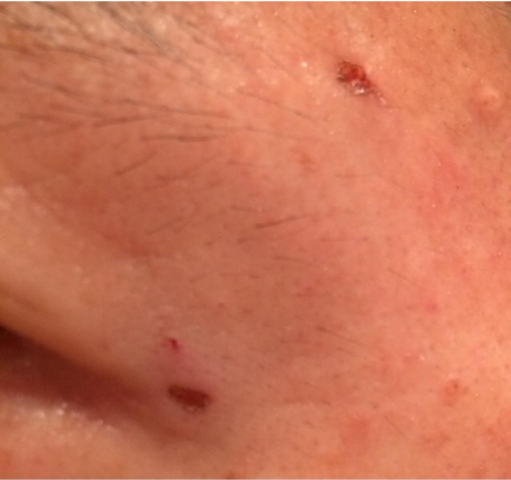 ちいさなほくろの除去跡は虫にかまれた跡のようです。