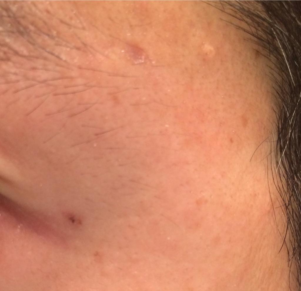 小さなほくろを除去して4週間後、中心に黒い点が現れました。