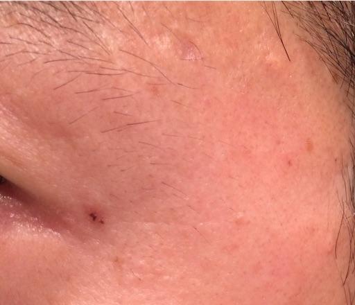 レーザー治療から6週間後のほくろ除去跡