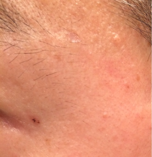 レーザー治療から7週間後のほくろの除去跡