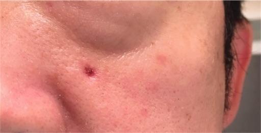 一週間後、クリニックに行ってほくろ除去跡を診てもらった。前よりも赤みが濃いのは、それだけ深く焼いたからだそうだ。