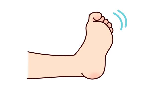 筋膜性疼痛症候群の予兆 足のツッパリ