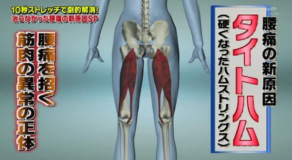 腰痛の原因タイトハム