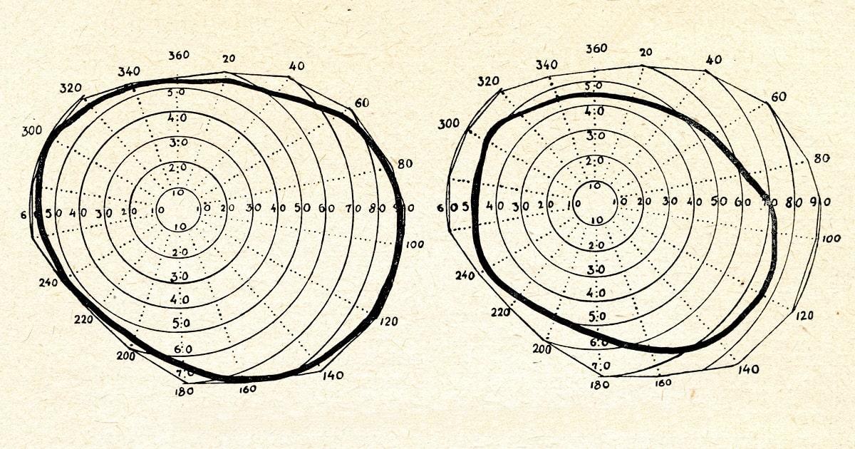 視野を示す視野検査チャート