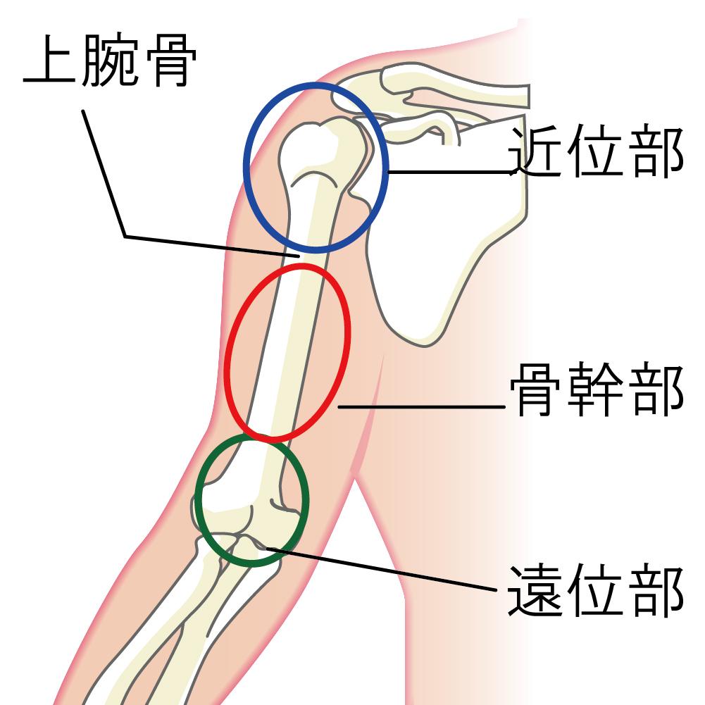 右上腕骨頚部
