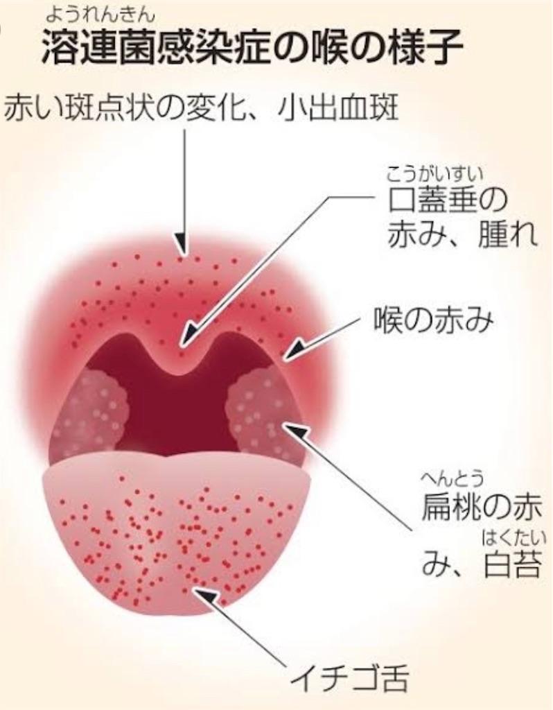 症状 溶連菌