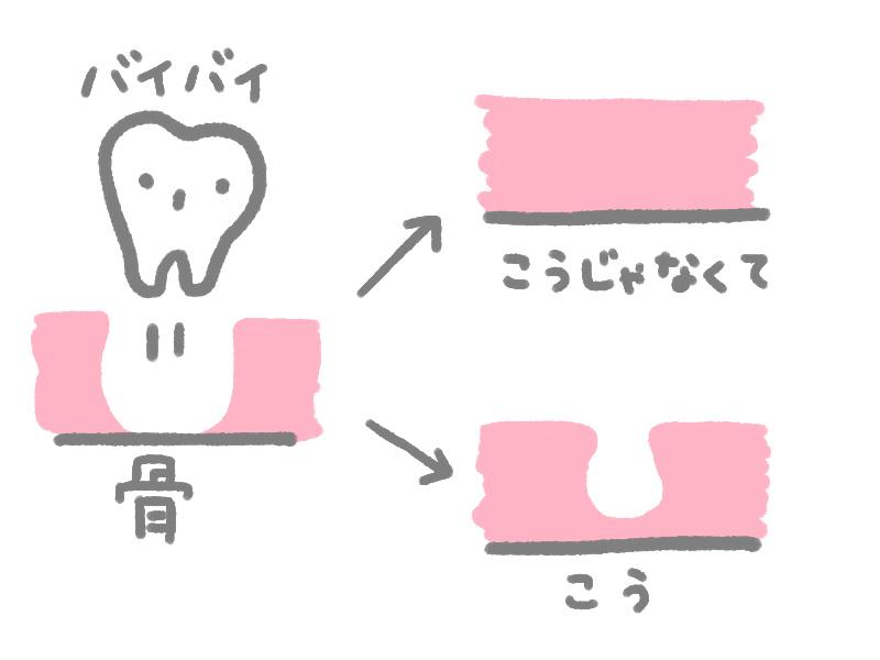 f:id:shi-ashi-n:20170703164637j:plain