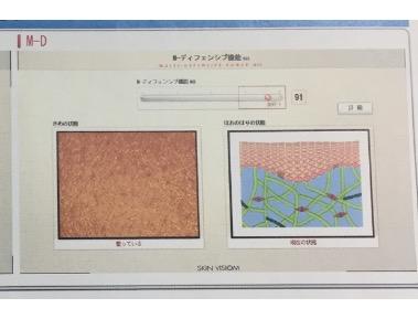 f:id:shi-yam:20170123140626j:plain