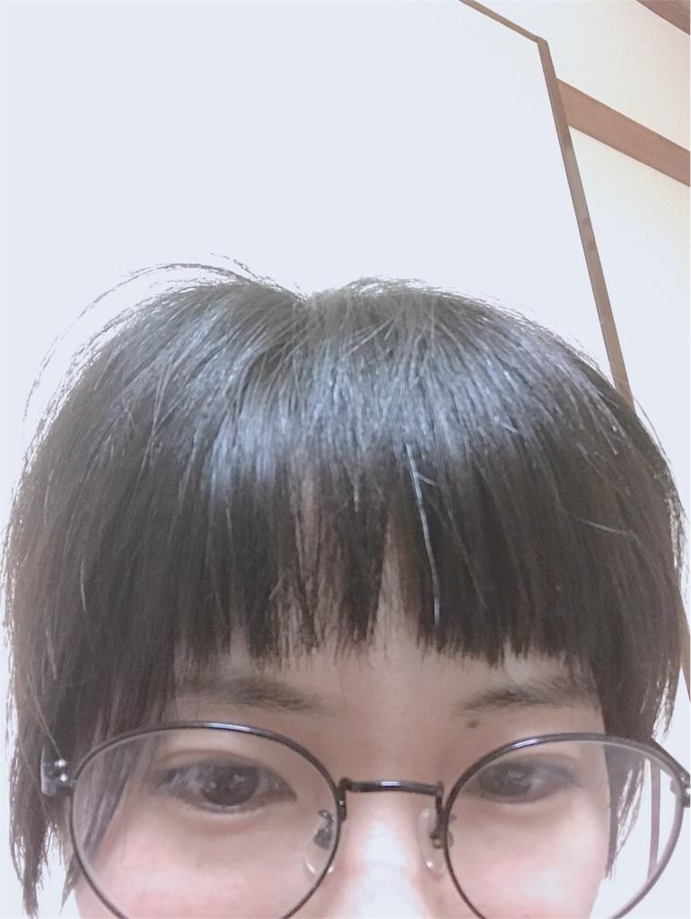 f:id:shiba321:20180424232303j:image