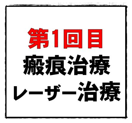 f:id:shibaccho:20160615174605p:plain