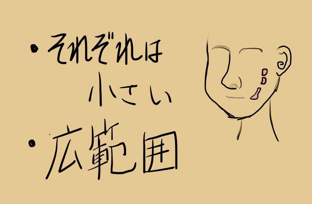 f:id:shibaccho:20171020194232j:plain