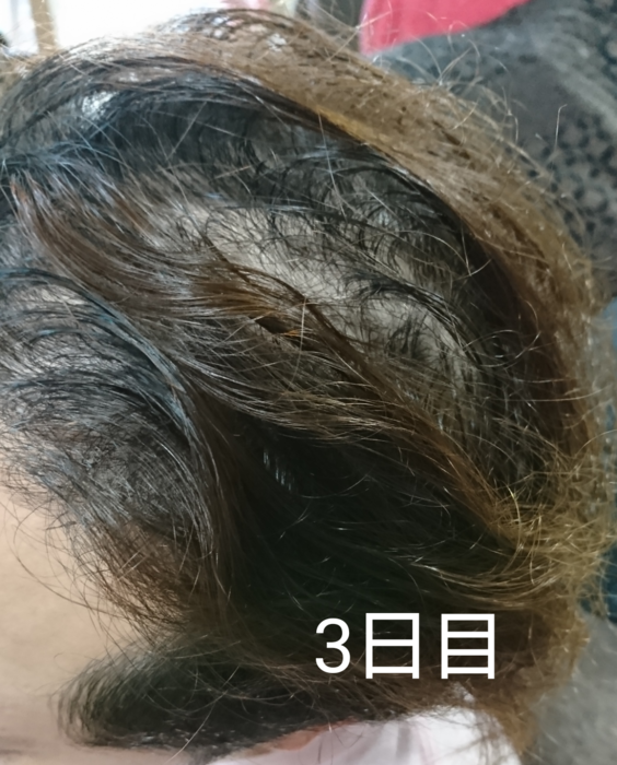 f:id:shibalog:20180914124109p:plain