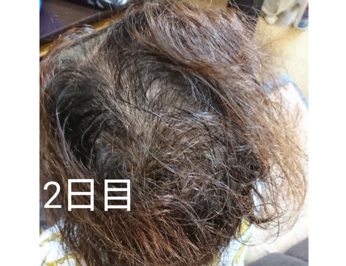 f:id:shibalog:20180914124116p:plain